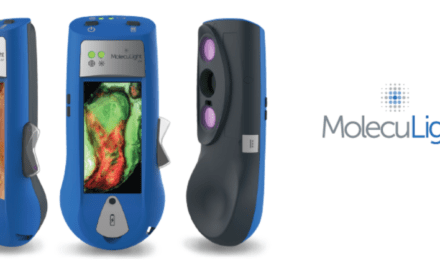 MolecuLight secures US $7.5M loan financing from Oxford Finance – Private Capital Journal